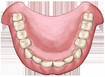プラスチックの入れ歯
