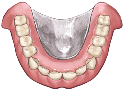 金属の入れ歯