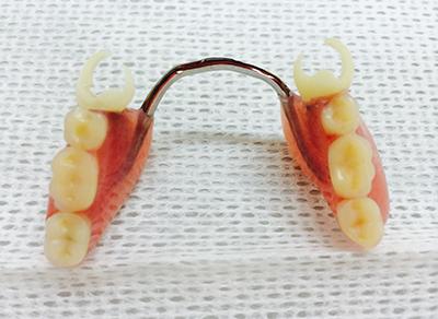 バネの白い入れ歯(ホワイトアセタルデンチャー)